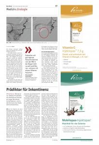Artikel in der Ärztewoche zur Prostataarterienembolisation
