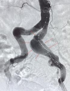 Angiographie der Beckenarterien vor Stentgraftimplantation - das Aneurysma auf der linken Seite (im Bild rechts) ist gut sichtbar, die Schlagader ist hier im Vergleich zur rechten Seite deutlich erweitert.