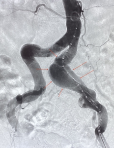 Angiography showing the aneurysm of the left common iliac artery before stentgraft implantation